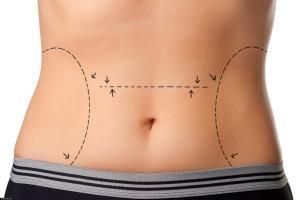 chirurgia plastyczna brzucha